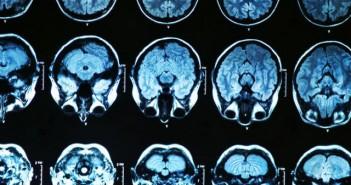Loãng xương có thể liên quan đến bệnh Alzheimer